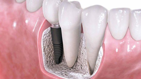 batıkent implant