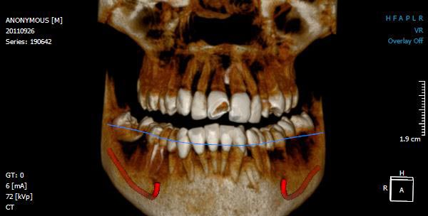 Diş tomografi ankara