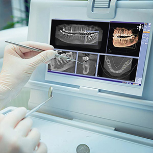 dijital tomografi