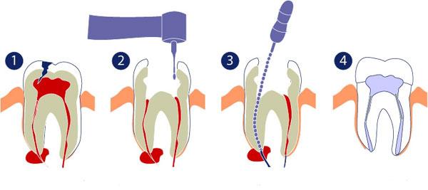 Diş kanal tedavisi