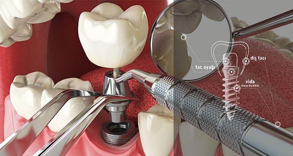 ümitköy implant