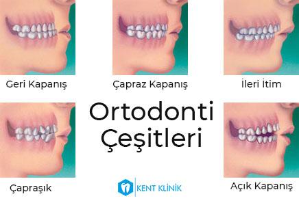 Ortodonti Çeşitleri