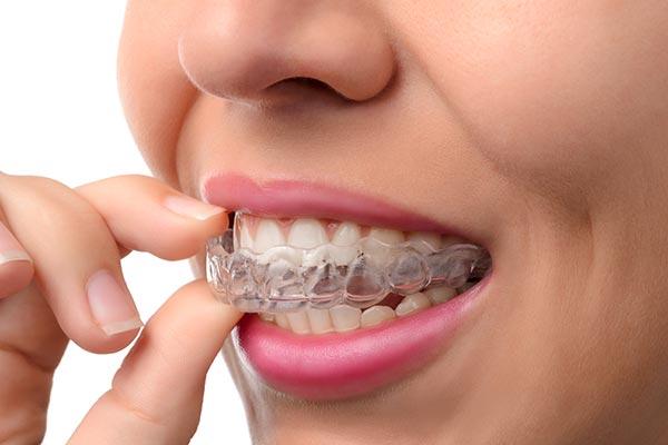 Dijital Ortodonti