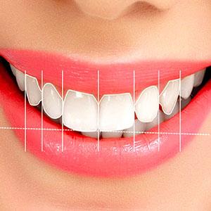 estetik-diş-hekimliği